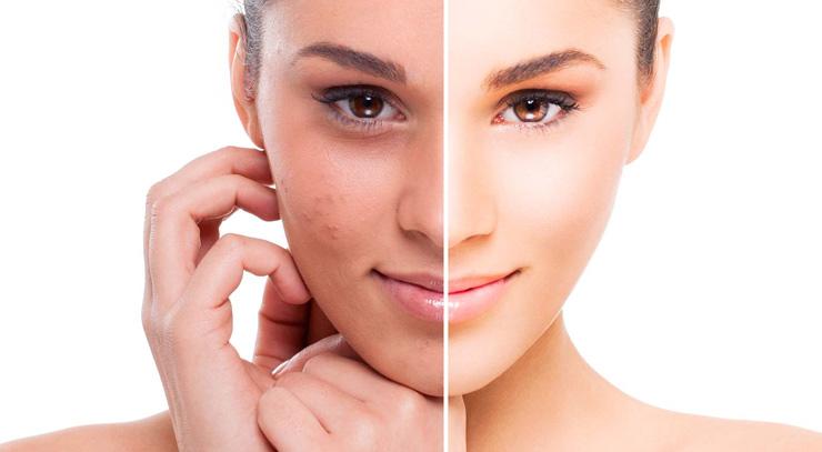 Мезотерапия лица и волос, Infini Lutronic, PRP терапия лица и волос, биоревитализация и ботулинотерапия, чистка лица, пилинг, уходовые процедуры, перманентный макияж, наращивание ресниц, оформление бровейс лучшими мастерами The Science of Beauty.